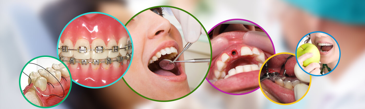 dental care in Bangalore